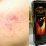 Mengatasi kulit wajah berjerawat dengan madu hitam pahit