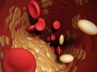 Hidup sehat tanpa kolesterol