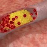 Obat untuk kolesterol tinggi