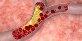 Madu obat herbal kolesterol
