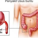 Ciri-ciri Penyakit Usus Buntu